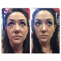 Instantly Ageless Botox Instantâneo - Jeunesse® Original