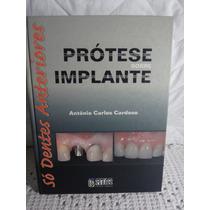 Livro Prótese Sobre Implante - Só Dentes Anteriores