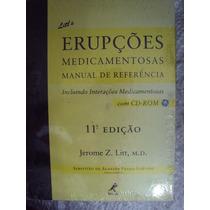 Litts Erupções Medicamentosas - Jerome Z. Litt