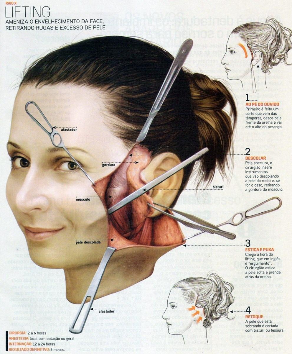 <b>Como Ficar</b> Mais <b>Bonito</b> Super Interessante - Cirurgias Nova - R$ 6 <b>...</b> 2014