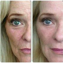 Plastica Temporaria Instantanea Rejuvenecimento Botox Ageles