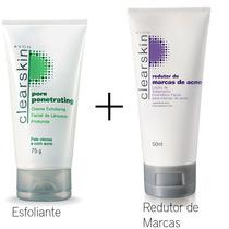 Kit Esfoliante Loção De Tratamento #facial Marcas De# Acne
