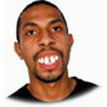 Dentadura Falsa - Dentão, Dentuso, Ronaldinh