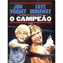 Dvd O Campeão (1979) - Novo Lacrado Original