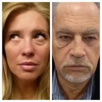 Ageless Botox Instantaneo