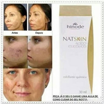 Nat Skin Ácido Glicólico 6% - 30 Ml Frete Grátis!!!