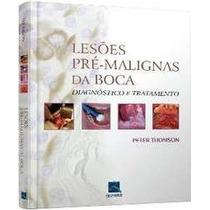 Lesoes Pre-malignas Da Boca | Diagnóstico E Tratamento