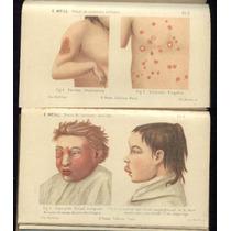 Ano 1905 - Pediatria - Edmond Weill - 81 Figuras 8 Pranchas